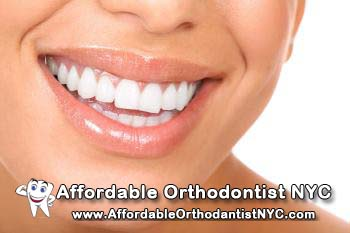 Best Invisalign Orthodontist In NYC