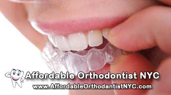 We Offer The Cheapest Invisalign In NYC